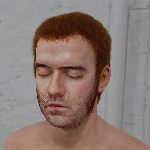 skin41