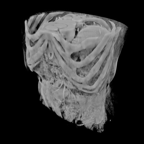 MRI_blender
