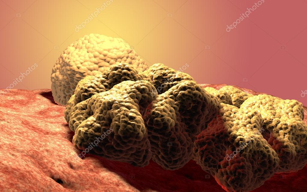depositphotos_67099347-stock-photo-cancer-cell-tumor-3d-medical