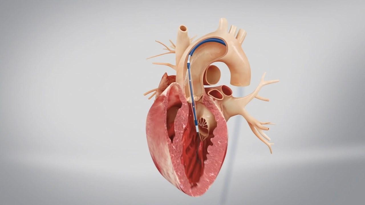 Heart%20Ref